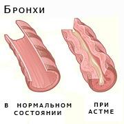 бронхиальная астма тяжелой формы гормонозависимая